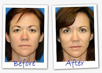 before and after Eye Secrets Eyelid strips