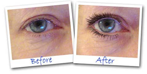 LIFT YOUR EYELIDS WITHOUT SURGERY before and after