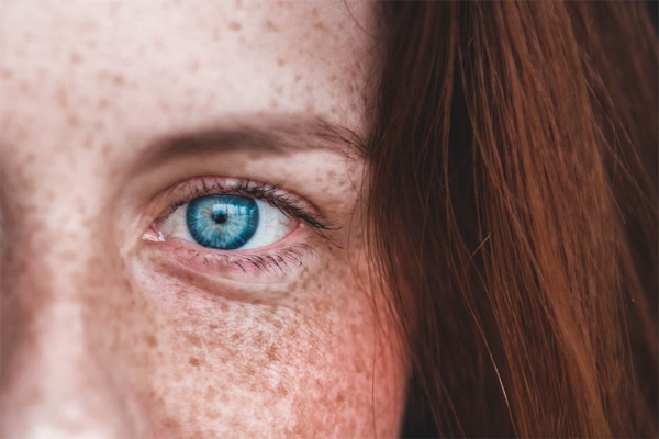 licorice root extract lightens freckles